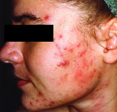 Akne - Pickel im Gesicht